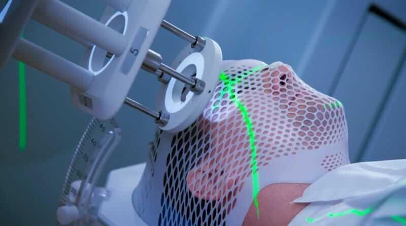 Bestrahlungslaser bestrahlt den Kopf eines Patienten